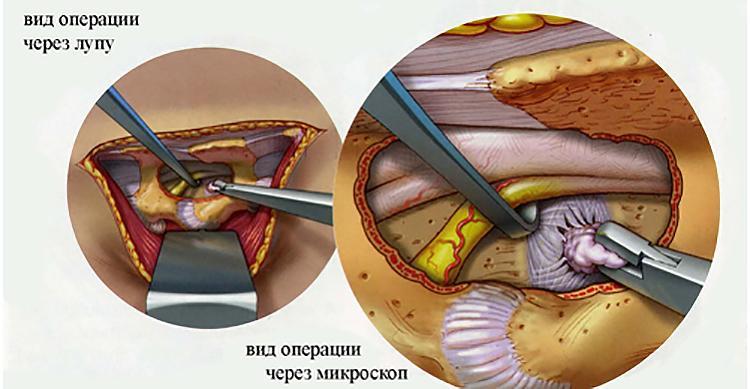 Осложнения после грыжи у пожилых thumbnail